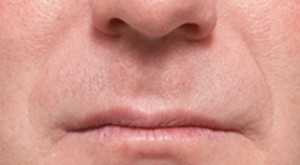 Non-Surgical Procedures - Juvederm - Case #2103 After