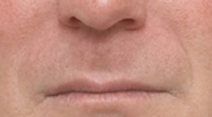 Non-Surgical Procedures - Juvederm - Case #2103 Before