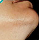 Non-Surgical Procedures - Laser Hair Removal - Case #2136 Before