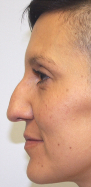 Non-Surgical Procedures - Juvederm - Case #3362 Before