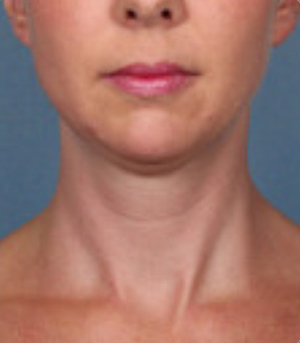 Non-Surgical Procedures - Kybella - Case #3821 After