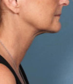 Non-Surgical Procedures - Kybella - Case #3827 After