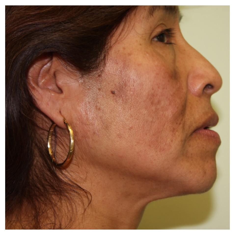 Non-Surgical Procedures - Fraxel - Case #2170 Before