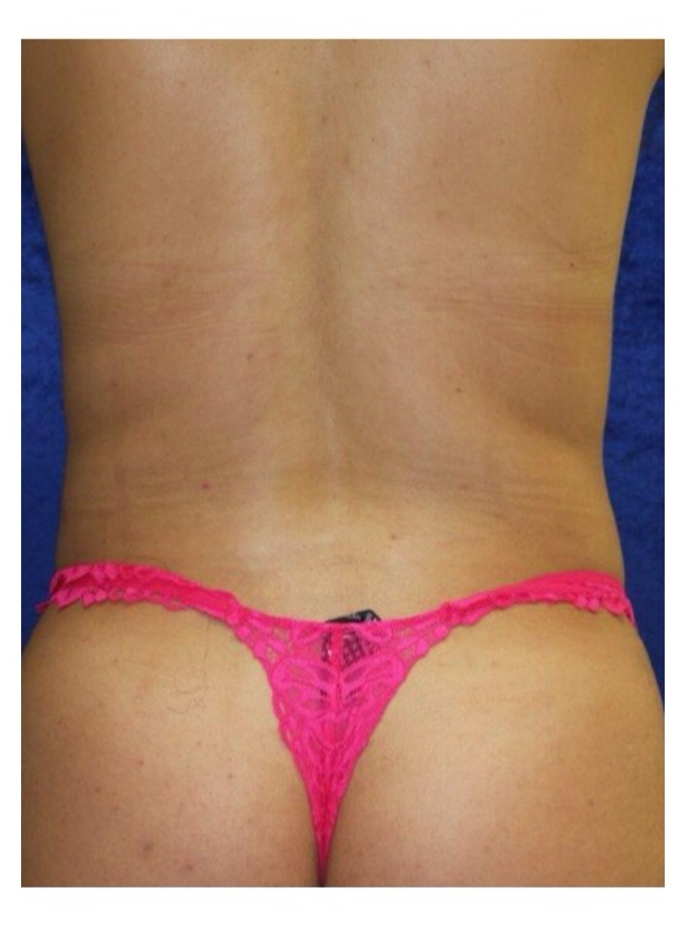 Body Procedures - Liposuction - Case #2188 After