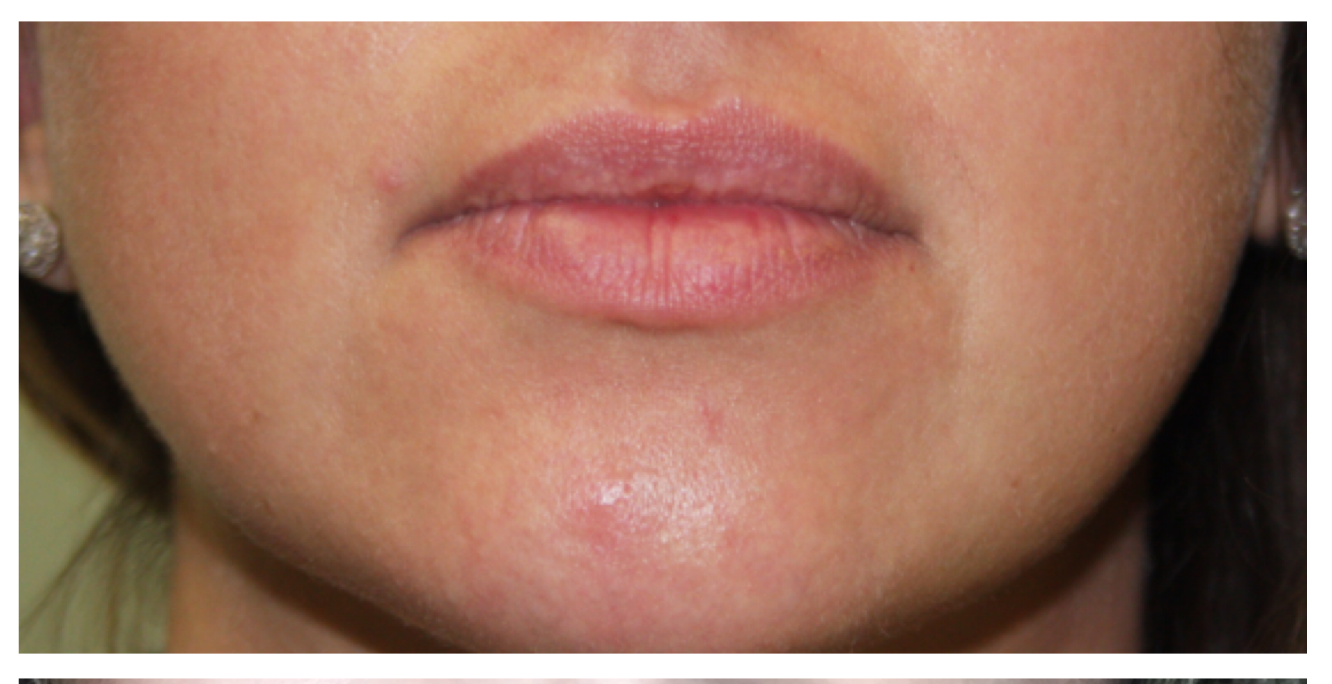 Non-Surgical Procedures - Juvederm - Case #3361 Before